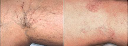 Laser_Vein_Reduction