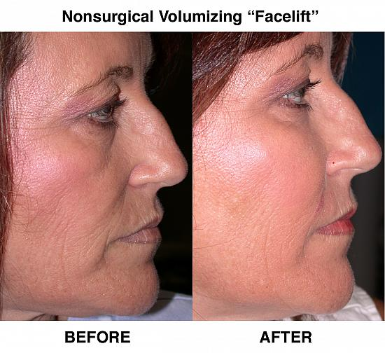Nonsurgical-Volumizing-Facelift-wide550