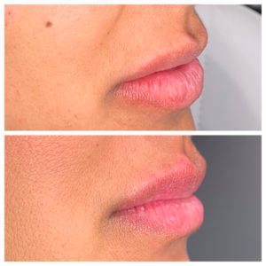 Sculptra - Lips 1
