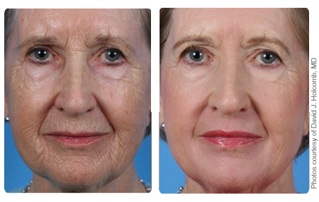 Laser Skin Resurfacing Empire Eye And Laser Center
