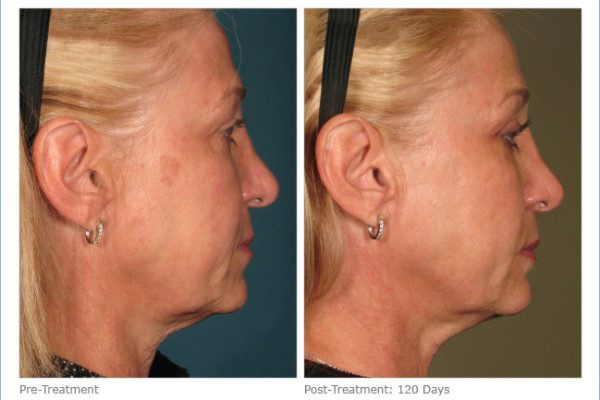 ultherapy_full_face_2-3