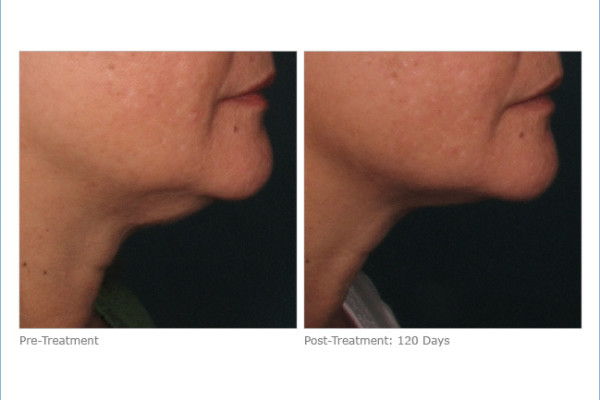 ultherapy_lower_face_2-1
