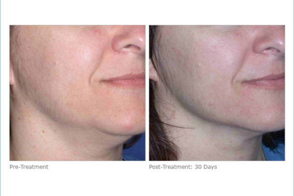 ultherapy_lower_face_2-3
