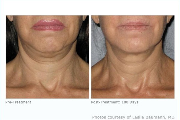 ultherapy_neck_1