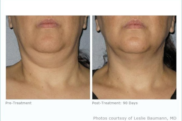 ultherapy_neck_2