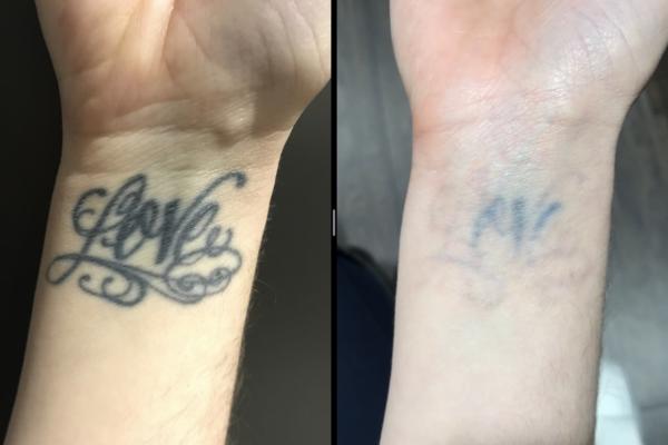 Tattoo Removal 3