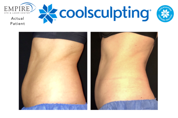 Website coolsculpting 2
