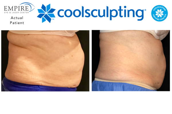 Website coolsculpting 5