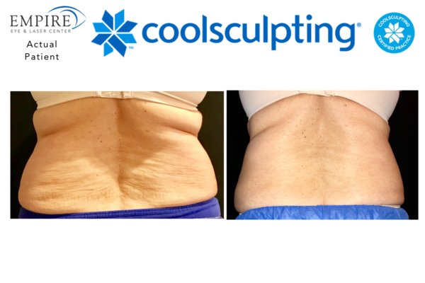 Website coolsculpting 6