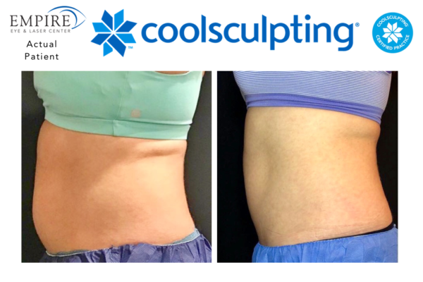 Website coolsculpting