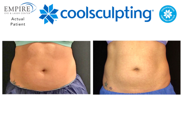 Website coolsculpting 8