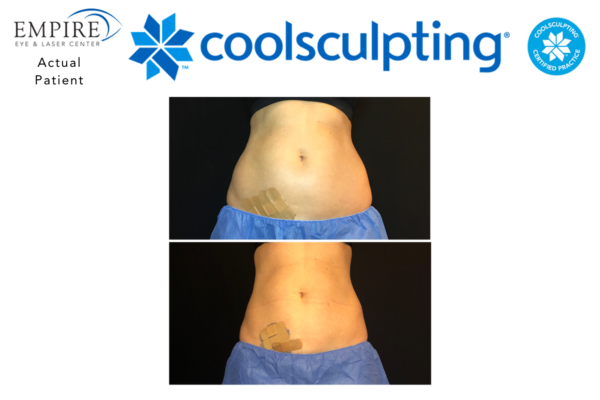 Website coolsculpting 9