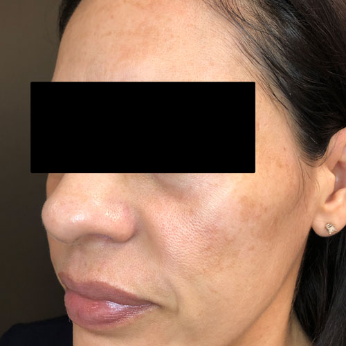 Get the amazing ZO 3-Step Peel at Empire Eye and Laser Center in Bakersfield, CA.